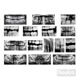 Rayos X Dental